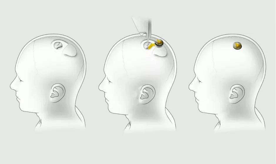 Neuralink in brain illustration