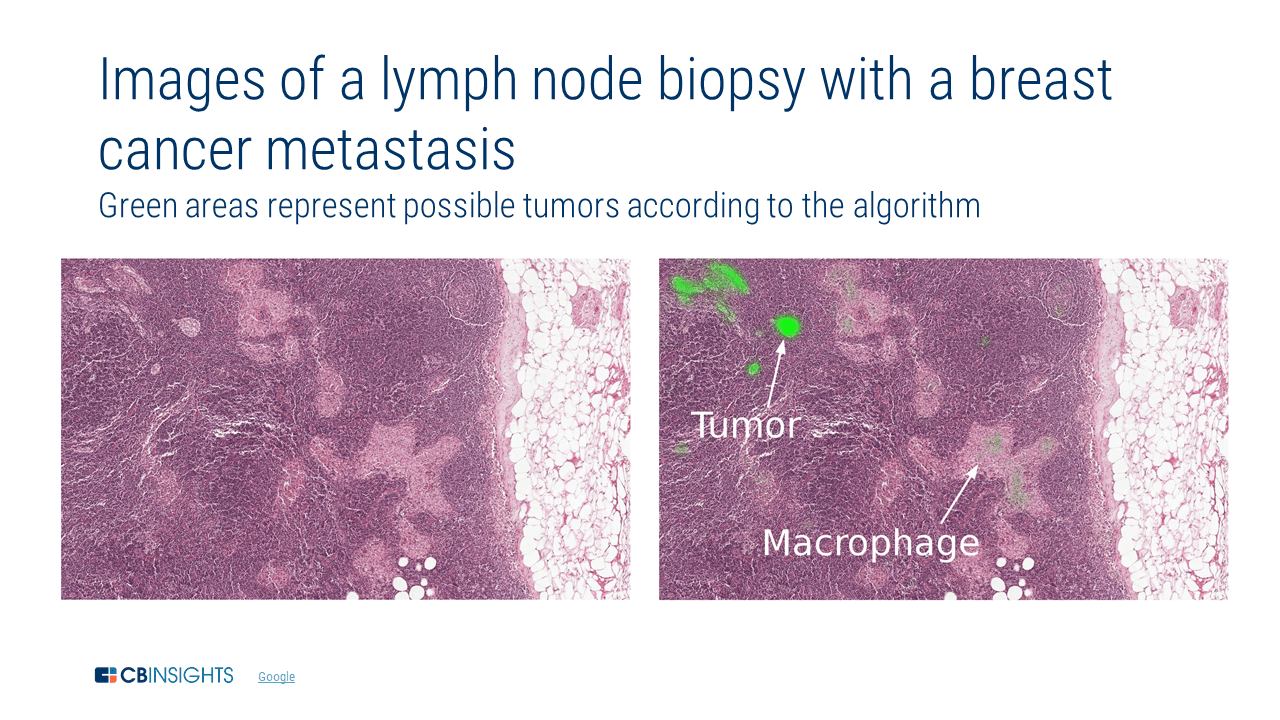 Side-by-side visualization of cancer cells detected using Alphabet technologies
