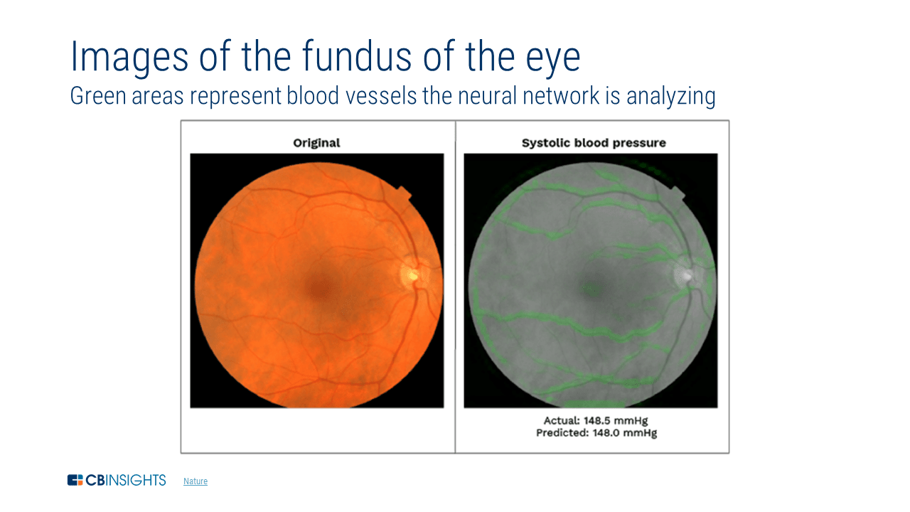 Comparison image showing how AI technologies were used to better identify visual disease in patients' eyes