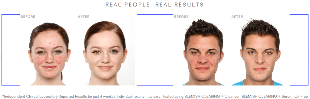 Before/after photos of patient results from clinical laboratory studies of Juice Beauty's skincare products